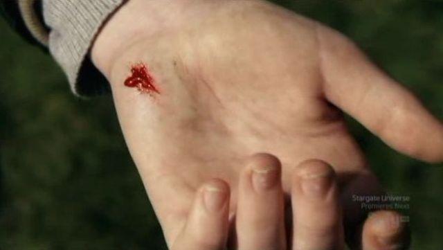 Scraped hand